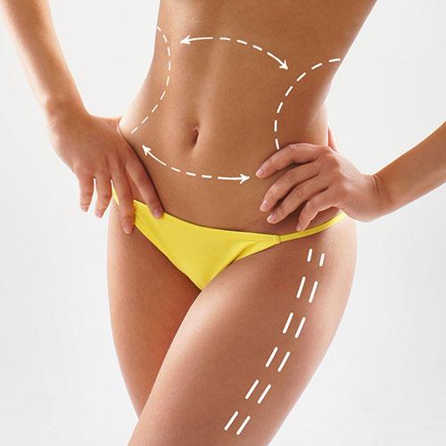 Liposuction Ameliyatının Süresini Belirleyen Etkenler Nelerdir ?