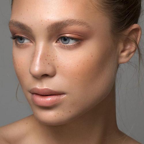 Daha kadınsı yüz hatları Masseter Botoks ile mümkün