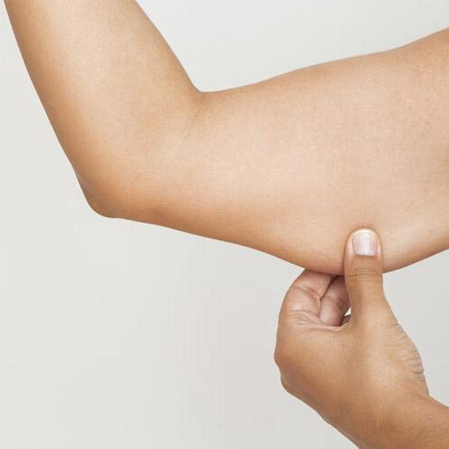 Post bariatri ile obezitenin izlerinden kurtulun